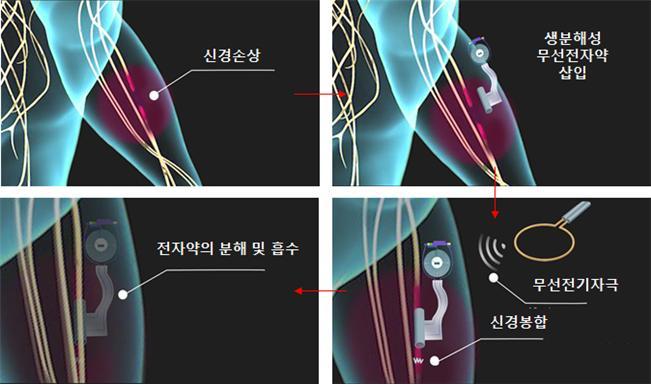 생분해성 전자약의 신경치료 과정 - 사진 제공 KAIST