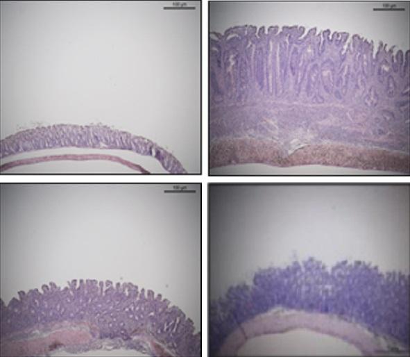 정상 쥐(왼쪽 위)와 염증을 앓는 쥐(오른쪽 위), '비피더스 PRI1' 균을 투여한 쥐(왼쪽 아래), 비피더스 PRI1 균의 세포표면다당체(CSGG)만 투여한 쥐의 장 세포. 세포표면다당체만으로도 균을 투여한 것과 같은 항염증 효과가 나타났다. - 기초과학연구원(IBS) 제공