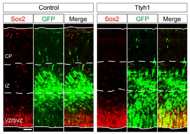 성균관대 연구진은 젊은 뇌에서 유전자 'Ttyh1'을 발현이 신경줄기세포 인근 지역에 더 많이 존재하고 있다는 사실을 면역염색법을 통해 밝혀냈다. 성균관대 제공.