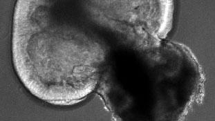 실험실에서 키운 망막 오가노이드