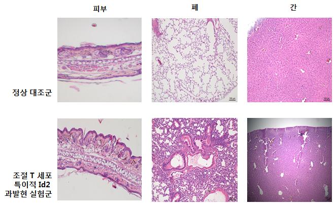 정상 대조군에 비해 Id2 단백질이 과발현 된 개체는 조절 T세포가 제 기능을 하지 못해 염증이 악화된다. - 자료: 기초과학연구원(IBS)