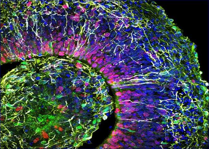 미국 샌디에이고 캘리포니아대 연구진이 만든 생후 25~39개월 아기 수준의 규칙적인 뇌파를 생성하는 인공 미니 뇌. - 샌디에이고 캘리포니아대 제공