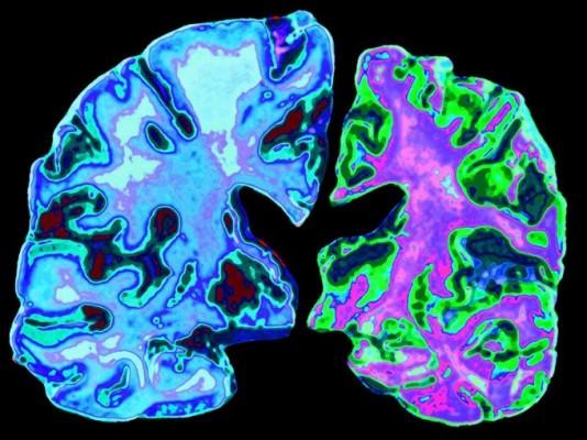 알츠하이머성 치매, 전염 가능성 높다