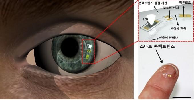 국내 연구진이 개발한 의료용 스마트 렌즈. UNIST 제공