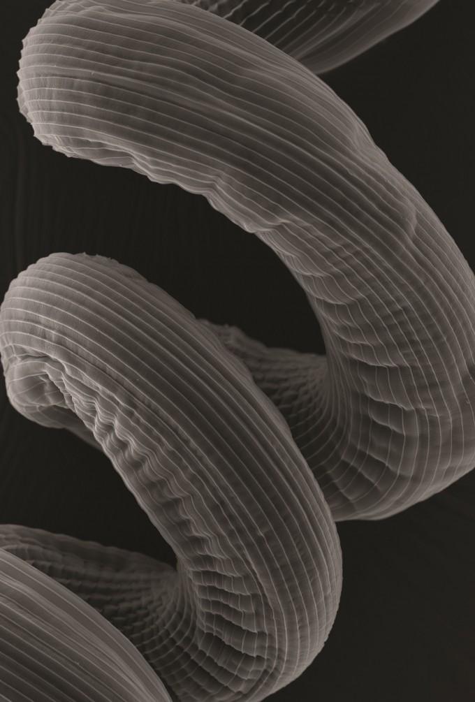 마이크로이미지 부문 우승작 '돌고 도는'. 쥐의 기생충인 '헬리그모소모이데스 폴리자이러스'의 피부층을 전자현미경으로 찍었다. 스프링 모양으로 생긴 이 기생충은 쥐의 창자 속 융털에서 산다. 이 기생충은 천식을 앓는 쥐를 돕는 알레르기 예방 물질을 생성하는 것으로 밝혀졌다. 그야말로 돌고 도는 공생관계다. 레안드로 렘그루버/영국왕립학회 제공
