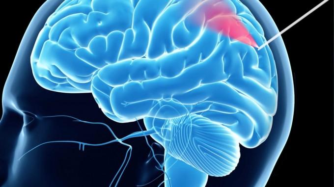 호주 애들레이드대 보건의학과 로버트 맥러플린 교수는 뇌 조직검사 중 발생하는 뇌출혈 위험을 막는 검사 바늘을 개발했다는 연구결과를 국제학술지 ′사이언스 어드밴시스′에 실었다. -로버트 맥러플린 제공