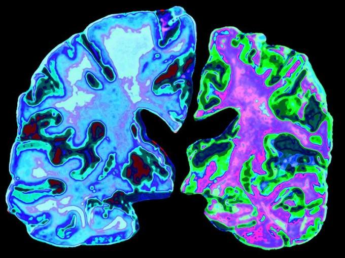 건강한 70세 노인의 뇌(왼쪽)와 알츠하이머병을 앓고 있는 같은 연령 환자의 뇌(오른쪽). 알츠하이머병에 걸리면 세포 독성이 있는 단백질 등이 과도하게 쌓인다. - 네이처 제공