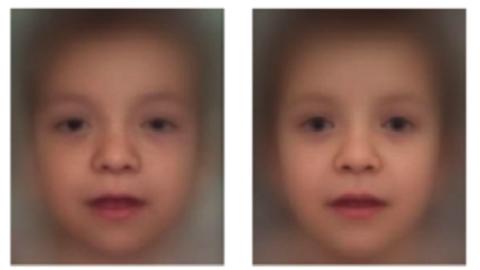 얼굴사진 분석해 희귀 유전질환 진단하는 AI 등장