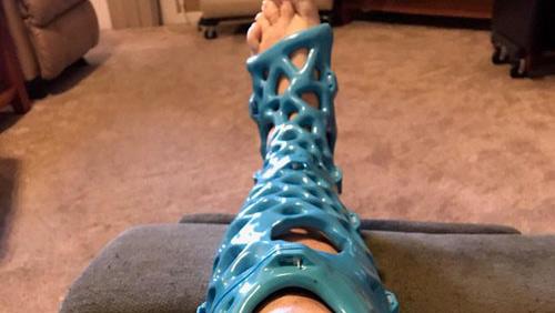 샤워가 가능한 3D 프린팅 깁스
