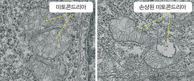 미세 플라스틱에 노출되지 않은 미토콘드리아(왼쪽)와 노출돼 손상된 미토콘드리아(오른쪽)의 모습. 한국생명공학연구원