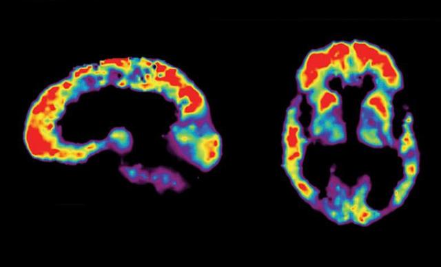 알츠하이머 치매 환자의 뇌를 양전자방출단층촬영(PET)으로 확인한 영상이다. 미국국립보건원(NIH) 제공