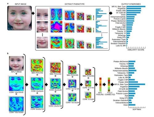 딥게슈탈트가 사진을 분석해 희귀 유전질환을 판별하는 과정을 나타낸 모식도다-미국 FDNA 제공