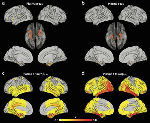 다양한 물질을 혈액에서 측정해 뇌 속 타우 단백질 축적 여부를 예측했다. (a) 혈중 인산화 타우만으로 예측한 결과, (b) 전체 타우로 예측한 결과, (c) 인산화타우/베타 아밀로이드 농도로 예측한 결과, (d) 전체 타우/베타 아밀로이드로 예측한 결과다. d가 가장 예측률이 높았다. -사진 제공 과학기술정보통신부