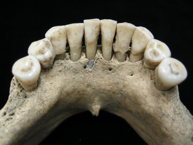 크리스티나 와이너 독일 막스플랑크진화인류학연구소 교수 연구팀은 중세 여성 유골의 치석에서 푸른 청금색 염료를 발견했다는 연구결과를 9일 국제학술지 ′사이언스 어드밴시스′에 실었다. 997년에서 1162년 사이에 죽은 것으로 추정되는 여성의 치아 유골. -크리스티나 와이너 제공