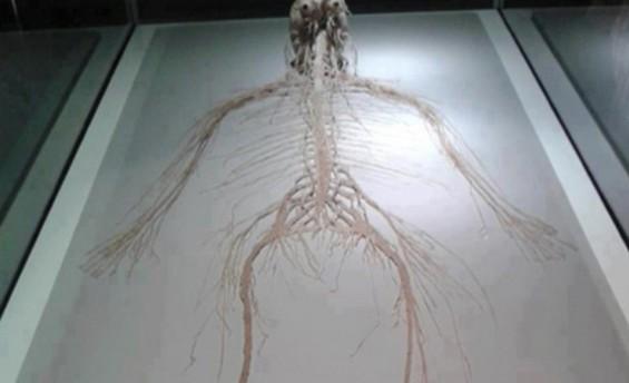 신경계만 남은 인간의 몸