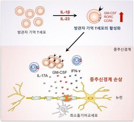 류머티스관절염 원인 알고보니 '방관자 면역세포'