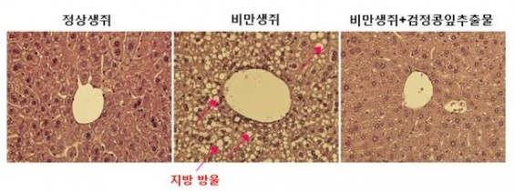 검정콩잎이 비만과 당뇨병, 지방간 막는다