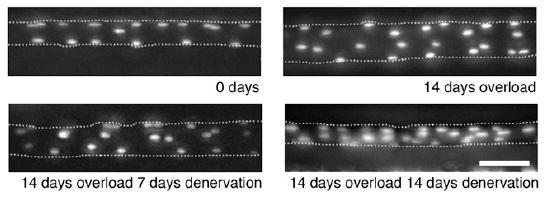 점선 안이 생쥐의 근섬유(근육세포)로, 세포핵이 형광을 띠게 해 쉽게 개수를 셀 수 있다(위 왼쪽). 2주 동안 근력운동을 하면 근섬유가 굵어지고 세포핵도 늘어난다(위 오른쪽). 신경을 끊어 근육이 움직이지 않으면 근섬유가 가늘어지지만 세포핵의 개수는 줄어들지 않는다(아래). 미국립과학원회보 제공