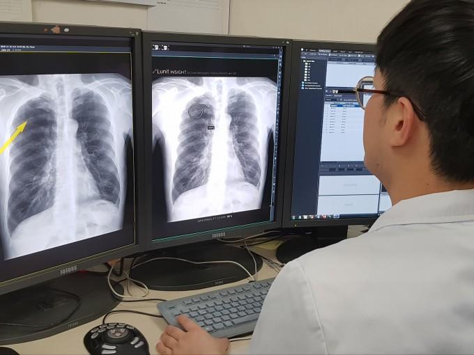 영상의료 AI 기업 루닛이 서울대병원과 공동개발한 AI 기반 영상판독보조시스템 ′루닛 인사이트′를 이용해 환자의 영상을 진료하고 있다. 흉부 X선 영상을 분석해 폐 결절을 찾는다. 지난해 8월 식품의약품안전처로부터 의료기기로 승인 받았다.  제공 루닛