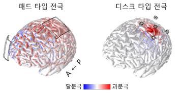 세 종류의 신경세포 가운데 ′3층 피라미드세포′의 활성화 반응을 시각화했다. 넓은 ′패드 타입′ 전극은 넓은 영역에, 작은 점 모양인 ′디스크 타입′ 전극은 제한된 뇌 영역에 자극이 집중됐다. 사진 제공 GIST