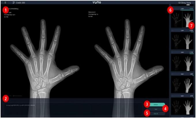 지난해 5월 국내 처음으로 식품의약품안전처 승인을 받은 AI 의료영상 판독시스템 '뷰노메드 본에이지'는 손 엑스선 영상을 이용해 뼈 나이를 판독한다.  제공 식품의약품안전처, 뷰노