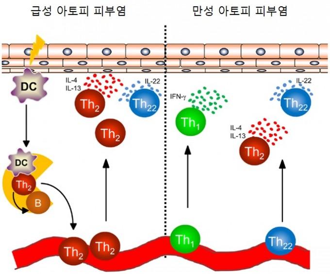 아토피 피부염 환자의 피부에서는 수지상세포(DC)가 림프절로 이동해 도움T세포를 자극한다. 도움T세포는 염증을 일으키는 면역물질(IL)을 내보낸다. 아토피 피부염이 만성이 되면 도움T세포가 자극 없이도 피부에서 염증을 일으키는 면역물질(IL과 IFN)을 내보낸다. frontiers in immunology 제공