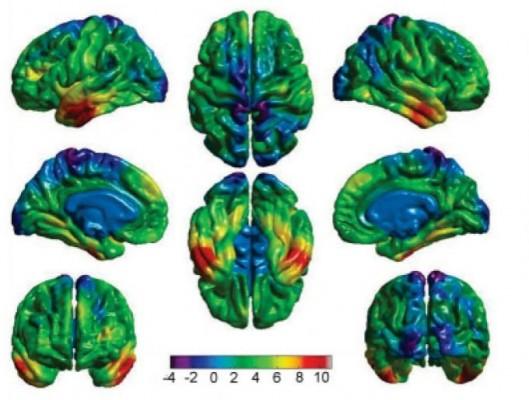 잘못된 습관이 뇌를 치매에 걸리게 한다