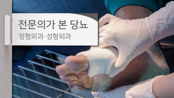 [전문의가 본 당뇨병] 당뇨발, 치료 차일피일 미루다간 발 잃을 위험 커
