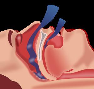 로봇 수술로 폐쇄성 수면무호흡증 치료 성공률 높인다