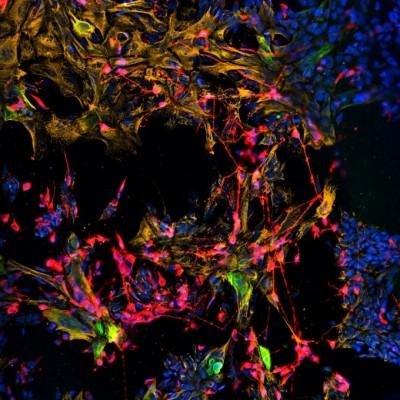 시각, 청각에 이어 후각도 줄기세포로 살리는 데 성공