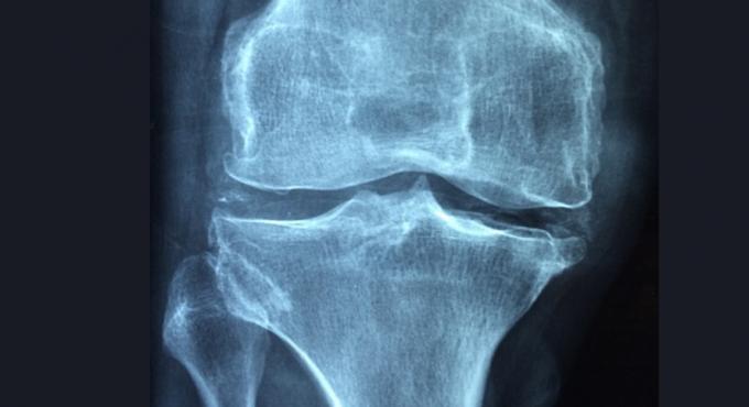 류마티스 관절염 유발하는 염증 반응 제어 방법 찾았다