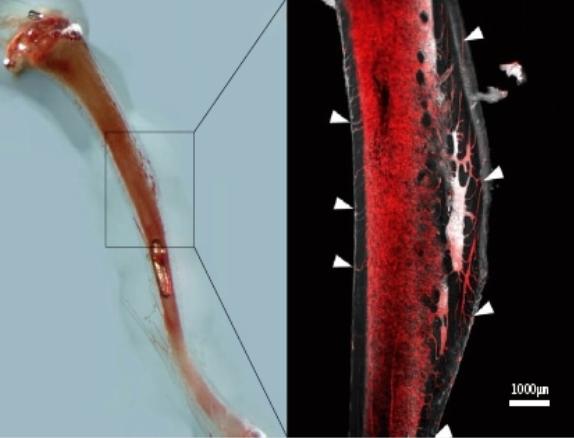 쥐의 다리뼈에서 발견된 경피혈관(TCV, 흰색화살표). 골수에서 생성된 혈구세포들이 이동하는 주요 통료로 추정된다. UDE,Matthias Gunzer, Anika Grüneboom