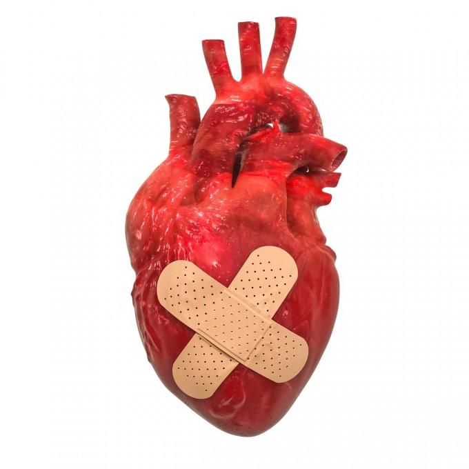 심장질환 일으키는 신종 돌연변이 8가지 발견