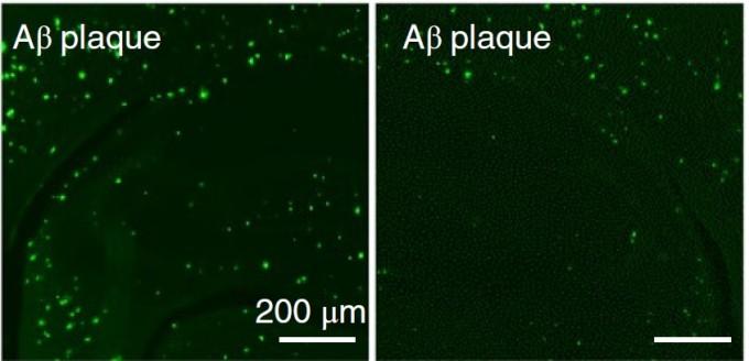 알츠하이머성 치매를 앓는 쥐(왼쪽)와 알츠하이머성 치매를 앓고 있지만 크리스퍼캐스9-나노복합체를 적용한 쥐(오른쪽)의 뇌를 관찰한 사진. 베타아밀로이드 단백질(초록색)이 급격히 감소한 것을 알 수 있다. 네이처 뉴로사이언스 제공