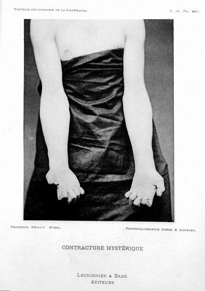 전환장애의 한 증상. 손가락이 구축되어 있다. 전환장애의 증상은 대개 아주 인상적인 편이다. 1891년 촬영.위키피디아