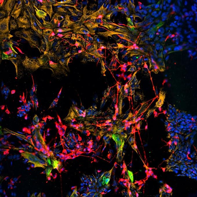 쥐의 수평 기저세포를 시험관에서 배양한 뒤 레티노 산을 처리해 활성화시킨 것. 활성화한 수평 기저세포는 후각상피세포의 신경세포(빨간색)과 비신경세포(금색)으로 분화한다. 초록색은 아직 분화하지 않은 줄기세포다. 테프츠대 제공