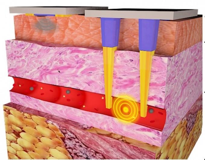 체외에 사용되는 기존 바이오센서(왼쪽 위)와 개발된 3차원 피부 침습형 센서(오른쪽)를 비교한 그림이다. 개발된 센서는 체외에서 진피에 있는 혈관까지 들어갈 수 있어, 혈액 내 존재하는 질병 원인 물질을 감지할 수 있다. 사진 제공 한국연구재단