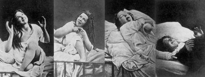 1876년에서 80년 경 촬영. 전형적인 전환증상을 보이는 여성. 위키피디아
