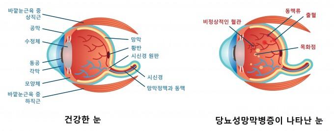 건강한 눈(왼쪽)과 당뇨성망막병증이 나타난 눈(오른쪽) 비교. 당뇨성망막병증이 생기면 비정상적으로 혈관이 생기고 출혈, 혈압이 높아지면서 동맥 일부가 팽창(동맥류),  목화점(출혈 후 혈관벽에 생긴 얼룩)이 나타날 수 있다. 게티이미지뱅크 제공