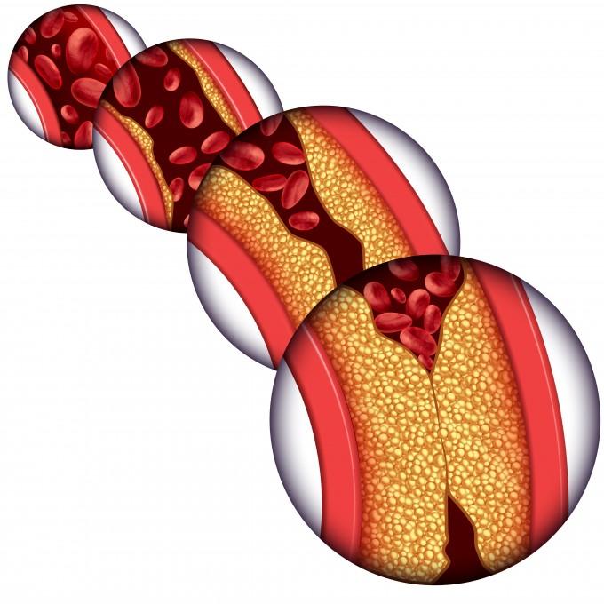 혈액순환이 원활하지 않아 혈류가 나빠지면 혈전이 생기면서 혈관을 막아 여러 동맥경화나 관상동맥질환, 심근경색 등 합병증이 생길 수 있다. 게티이미지뱅크 제공