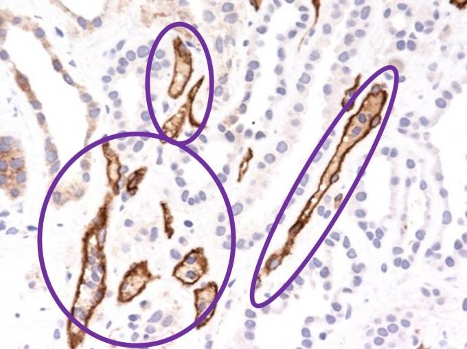 현미경으로 400배 확대한 신장 조직 슬라이드 사진. 동그라미 친 부분이 거부반응이 일어났을 가능성이 있는 모세혈관. 서울아산병원 제공