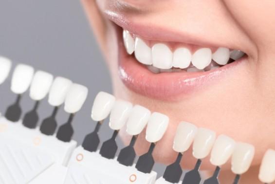 하얀 치아 만들려다 이 삭는다