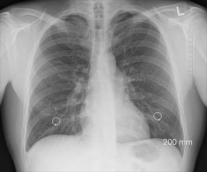 엑스레이·CT 등 방사선발생장치 허가 행정부담 줄인다