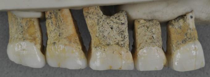 이번에 발굴돼 연구된 위턱 쪽 치아들이다. 특성 분석 결과 치아는 현생인류와 비슷한 면이 있는 것으로 나타났다.  사진제공