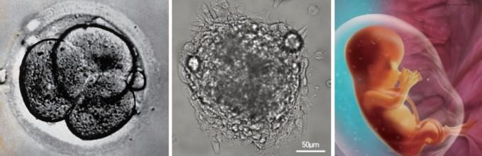 (왼쪽부터) 세포분열이 여러 번 일어난 수정란, 수정된지 12일 된 인간배아의 현미경 사진, 태아 일러스트. 과학동아 제공(자료 네이처)