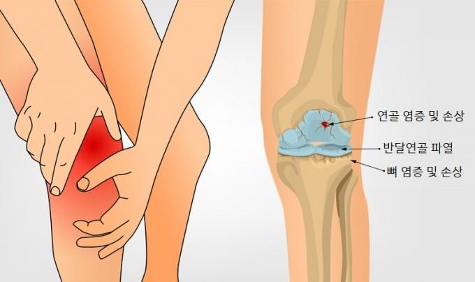 골관절염은 관절을 보호하는 연골이 점진적으로 닳으면서 뼈와 관절막, 인대에 염증이 생기는 병이다. 게티이미지뱅크 제공