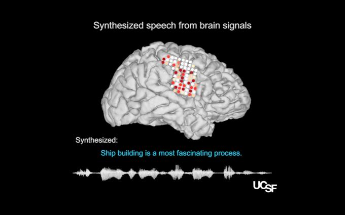 미국 UC 샌디에이고 의대 연구팀이 개발한 뇌 해독기. 뇌 측두엽 표면에 붙인 전극으로 발성기관 관련 전기 신호를 읽은 뒤 이를 바탕으로 음성을 합성한다. 사진제공 UC샌디에이고