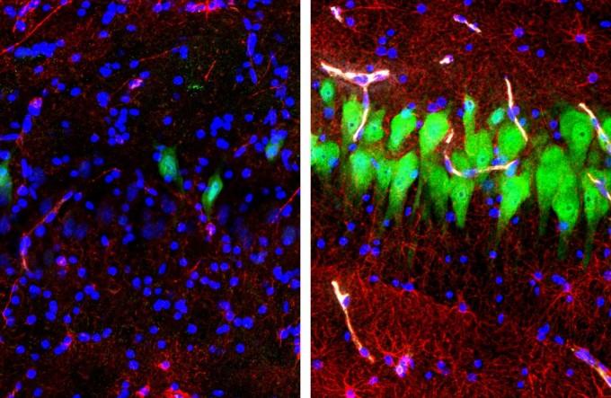 죽은 지 10시간이 된 돼지의 뇌를 분리해 해마 부위를 형광물질을 이용해 관찰했다. 왼쪽은 보통의 뇌고, 오른쪽은 미국 예일대 연구팀이 '브레인엑스' 기술로 액체를 주입해 일부 뇌세포의 기능을 회복시킨 사진이다. 신경세포(녹색) 및 성상교세포(붉은색), 세포핵(파란색. 세포 파괴의 증거)의 분포 차이가 확연하다. 사진제공 예일대 의대