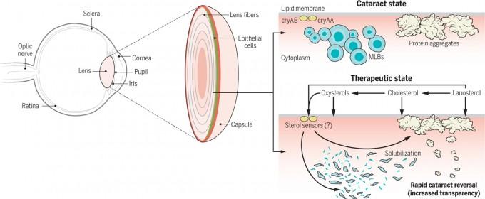 왼쪽은 눈의 구조로 수정체(lens)를 확대해 보면 섬유세포가 양파처럼 쌓여있다. 오른쪽 위는 백내장(cataract) 상태로 세포 안에 뭇층판소체(MLB)와 단백질 덩어리(protein aggregate)가 있어 빛을 산란시킨다. 오른쪽 아래는 스테롤이 열충격단백질 cryAA와 cryAB를 자극해 덩어리를 녹여내 수정체의 투명도를 회복시킨다는 메커니즘을 보여준다. '사이언스' / P. Huey 제공