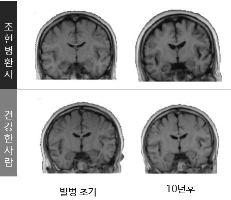 자기공명영상장치(MRI)로 촬영해보면 건강한 사람에 비해 조현병 환자의 뇌는 물리적으로 많이 위축돼 있다. 치료를 받지 않은 채 시간이 흐르면 뇌가 점점 더 위축된다.하지만 조기 진단해 약물치료를 받으면 완치할 수 있다. 의학및치의학저널 제공